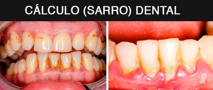 cálculo dental en paciente