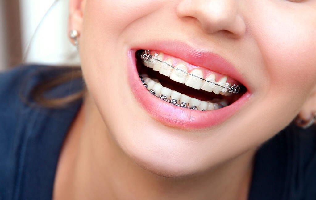 Ortodoncia con brackets metálicos y estéticos en Manizales