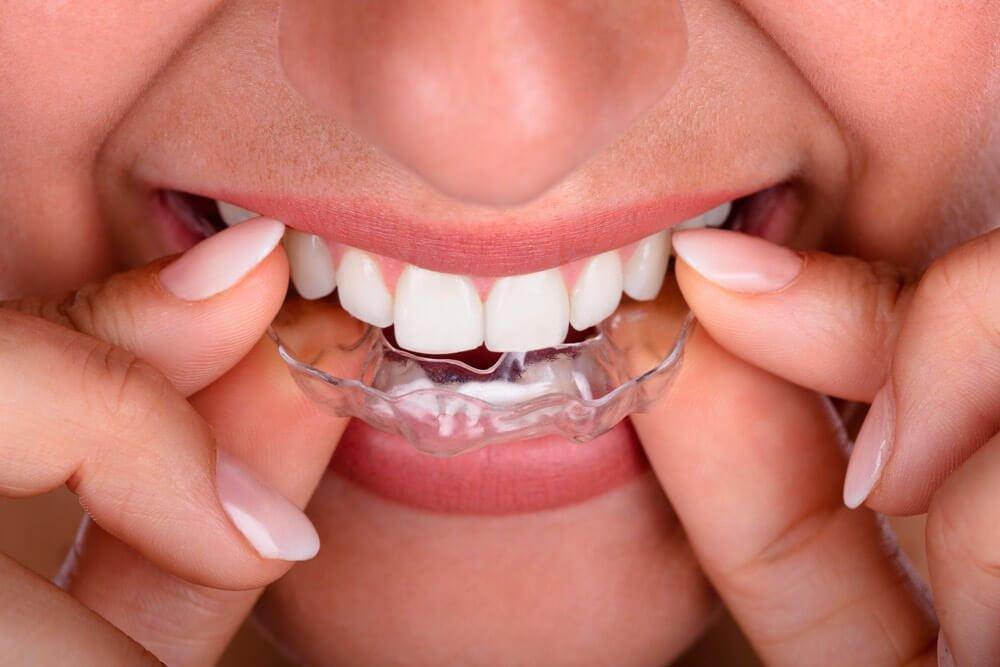 Ortodoncia Invisible con Alineadores de dientes en Manizales