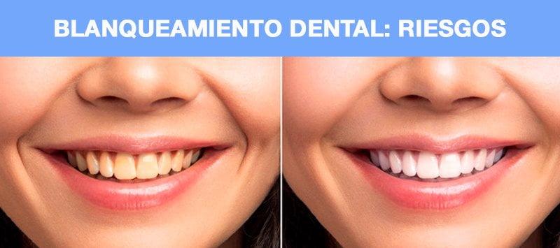 Riesgos blanqueamiento dental