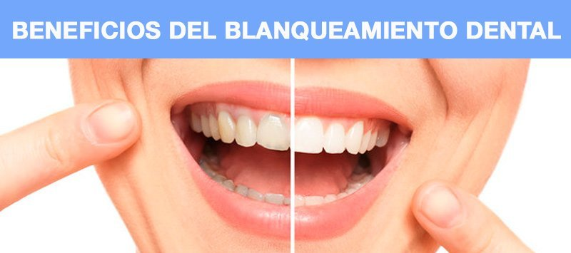 beneficios blanqueamiento dental manizales