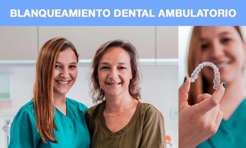 blanqueamiento dental ambulatorio