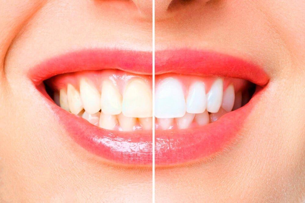 Blanqueamiento Dental en Manizales