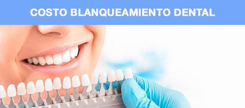Costo blanqueamiento dental manizales