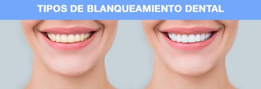 tipos-blanqueamiento-dental-manizales